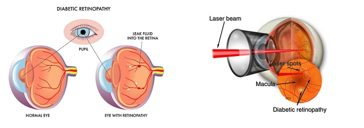 Green Laser for diabetic retinopathy, Focal laser surgery, Scatter or panretinal photocoagulation